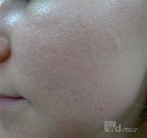 what causes acne scaring picture 11