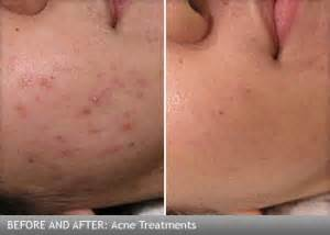 laser stretch mark removal proven picture 6