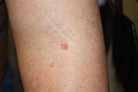 white crust on scar picture 9