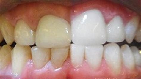 can natural teeth grow picture 11