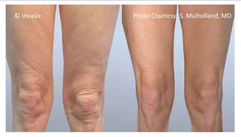 cellulite loss with weight picture 9