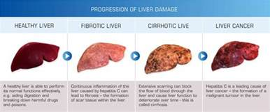 liver ailments and symptoms picture 7
