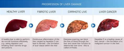 dry, red eyes, liver disease picture 14