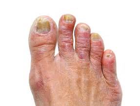 cure for yellow toe nail fungus picture 14