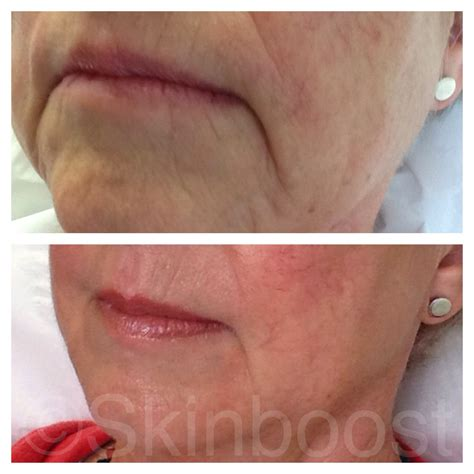 corner of mouth wrinkles picture 18