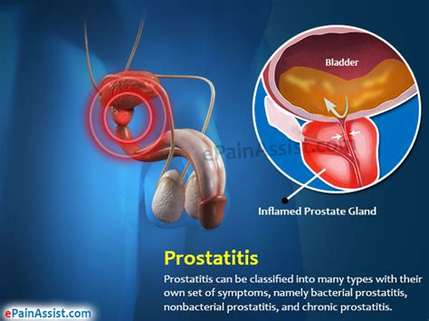 What causes prostate infections picture 17