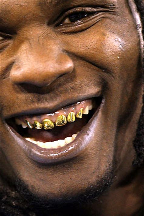 gold teeth business picture 5