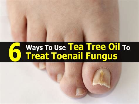 is there a tea that helps cure toenail picture 1