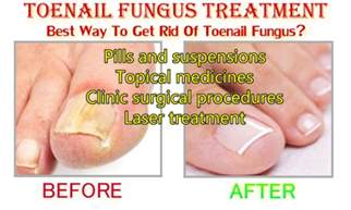 alternative cure for toenail fungus picture 5