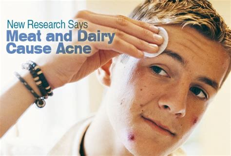dairy acne picture 5