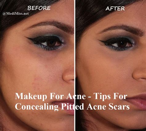 acne scar makeup picture 2