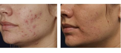 microdermabrasion for acne scars picture 1