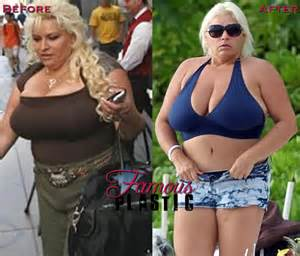 anna nicole true weight loss story picture 7
