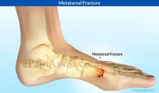 metatarsal pain relief picture 1