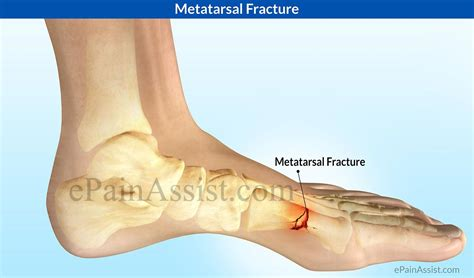 5th metatarsal pain diagnosis picture 2