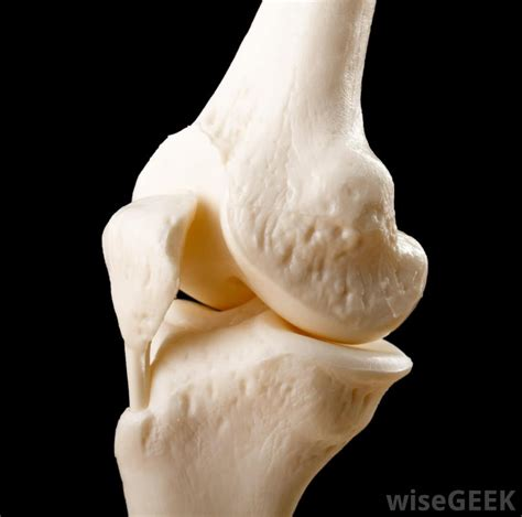 joint replacement picture 11