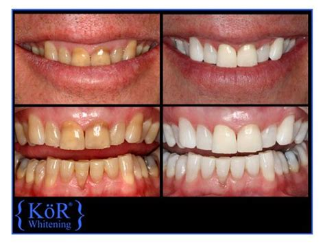 ft lauderdale teeth whitening picture 15