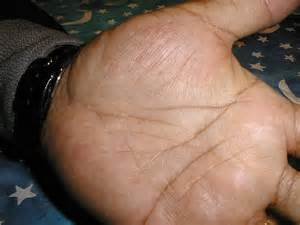 symptoms tiny warts on palm picture 15