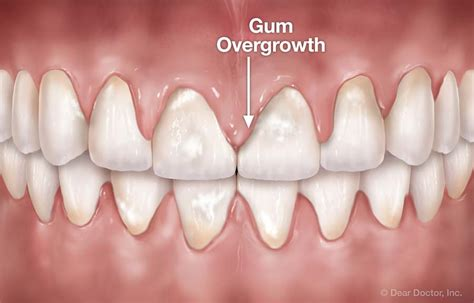 drugs affect on teeth and gums picture 1