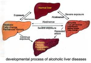 liver cirrhosis stages picture 9