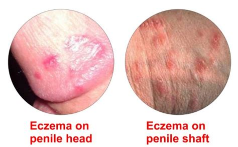 pennis hair removal cream for men picture 10