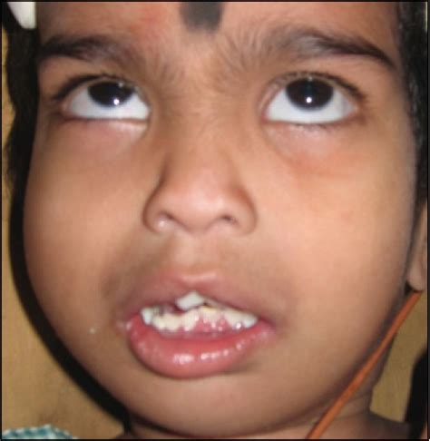 Cleft lip and pallet syndrome picture 7