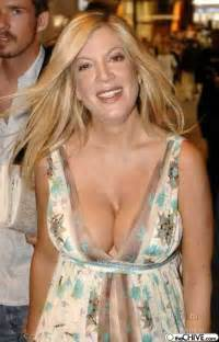 breast implants gone wrong picture 5