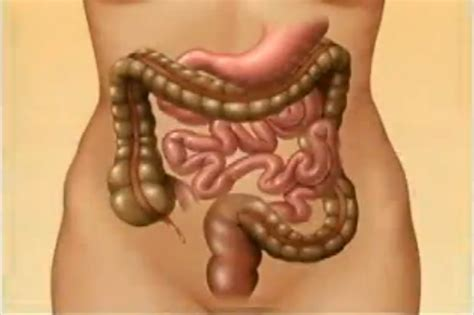 irritablebowel syndrome picture 13