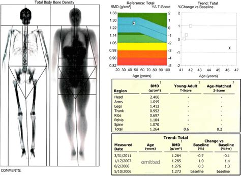 weight loss measurement chart picture 13