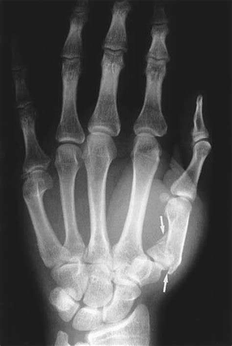 proxmal joint pain picture 7