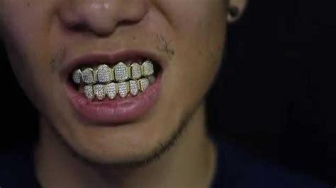 custom gold teeth picture 7