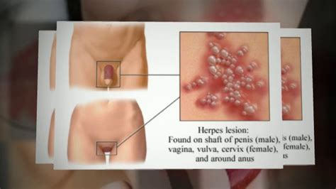 cold sores herpes picture 7