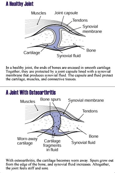 is degenerative joint disease a criteria for disability picture 13