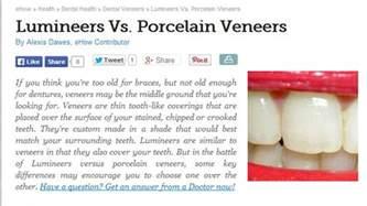 dental veneers for teeth picture 1