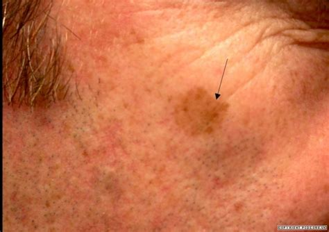 photographs of herpes simplex picture 17