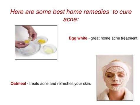 acne remedies picture 18