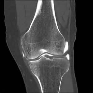 arthrogram procedure joint mri picture 3