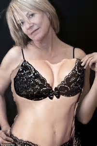 breast augmentation women picture 1