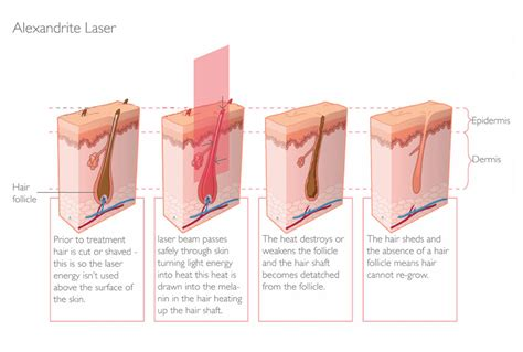 will laser hair removal work if you have picture 7