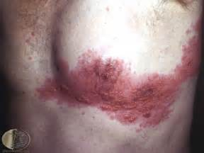 feed back on resolve herpes picture 7
