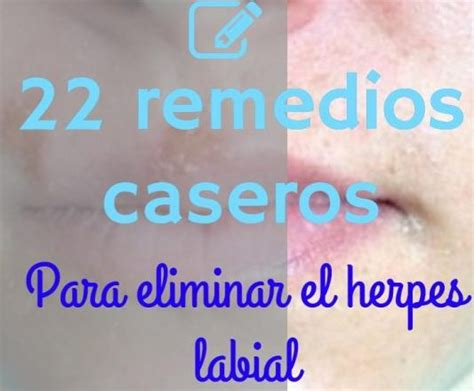 herpes virus 7 picture 6