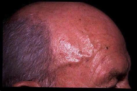 cavernous liver hemangioma picture 9