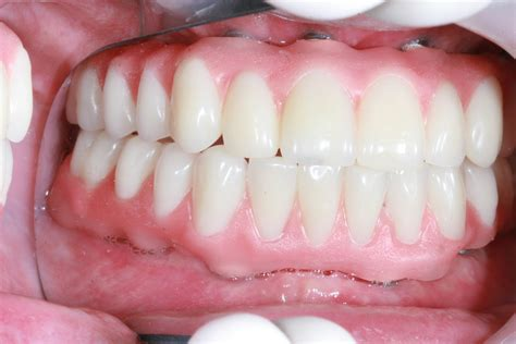 a picture of full set off teeth picture 11