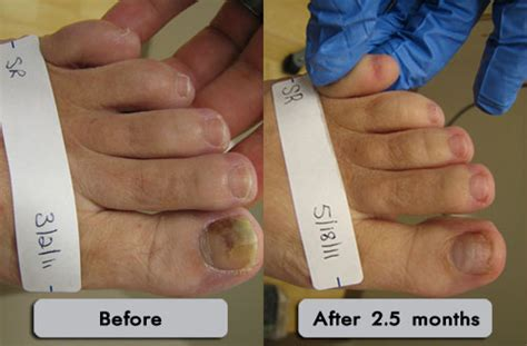 laser treatment for toe fungus in utah picture 3