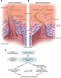 el toxemia symptoms picture 2