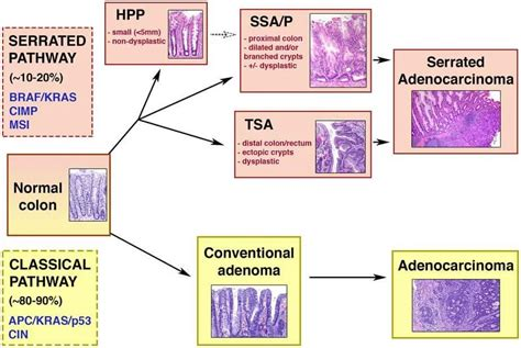 adenoma and adenocarcinoma of colon different pathology picture 7