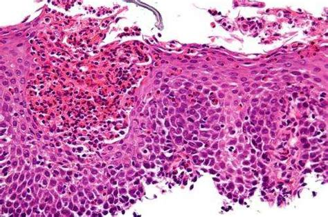homeopathic remedies for eosinophil esophagitis picture 18