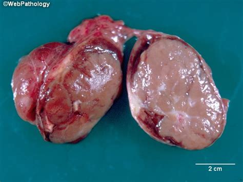 smoking and medullary thyroid cancer picture 5