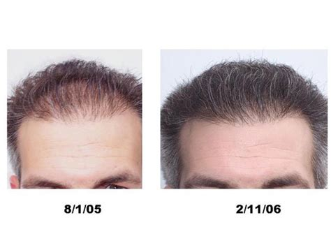 avodart on hair loss picture 15