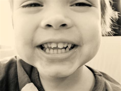 chipped baby teeth picture 10